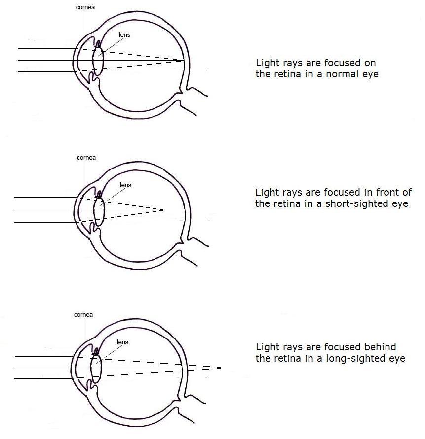 Diagram of short and long sightedness information of wiring diagram eye chemistryinmedicine rh chemistryinmedicine wordpress com eye diagram myopia eye ccuart Choice Image